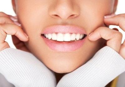 Отзывы о отбеливании зубов brilliant